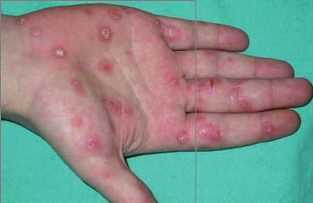 Clavo sifilítico