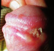 Chancro sifilítico
