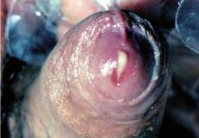 Uretritis gonocócica