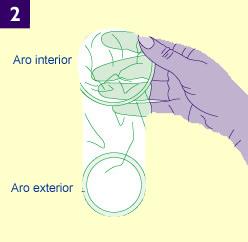 Un preservativo femenino extendido mostrando un aro interior y un aro el borde exterior