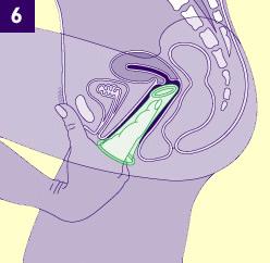 Dibujo un corte tranversal del interior de la vagina con un preservativo introducido en el interior impulsado por el dedo